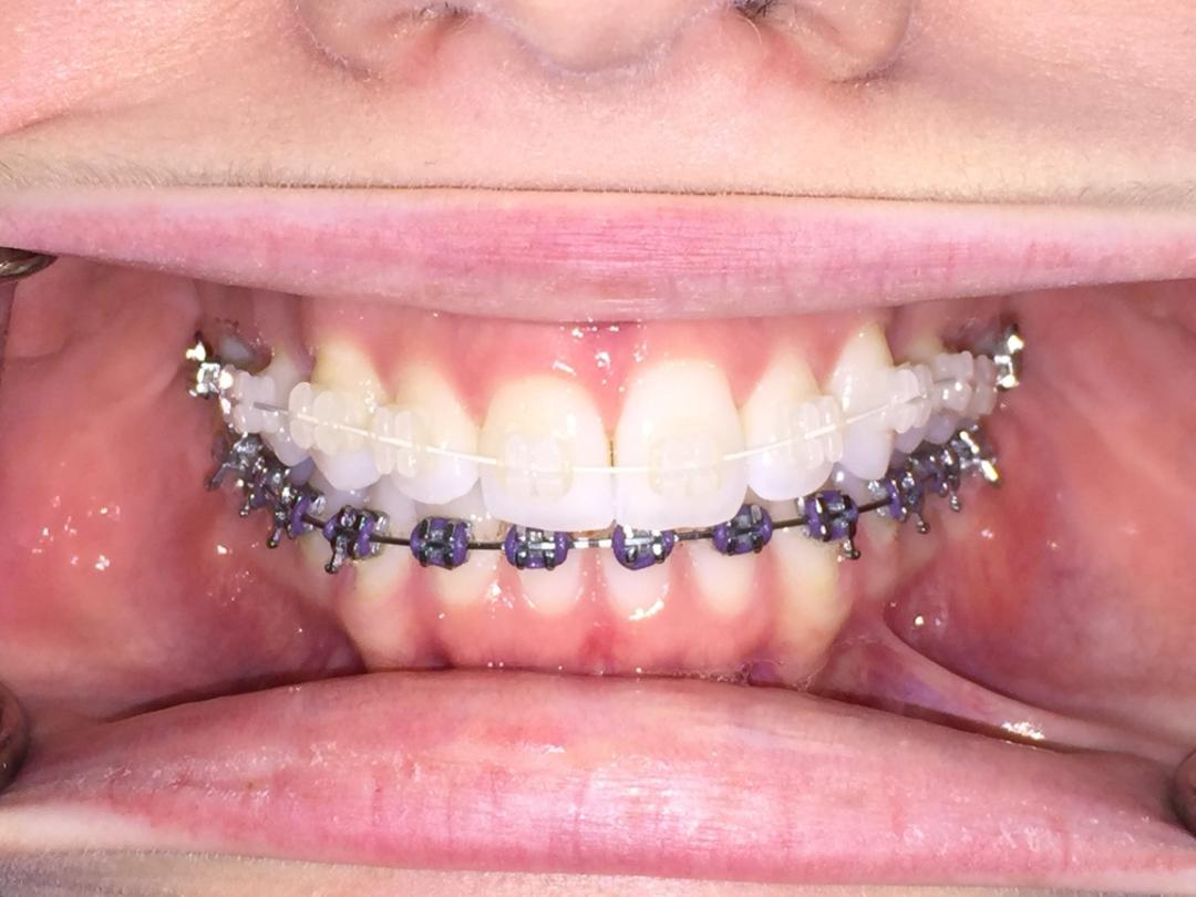 White and black braces